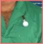 mon boton